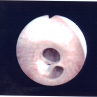 uretere-1